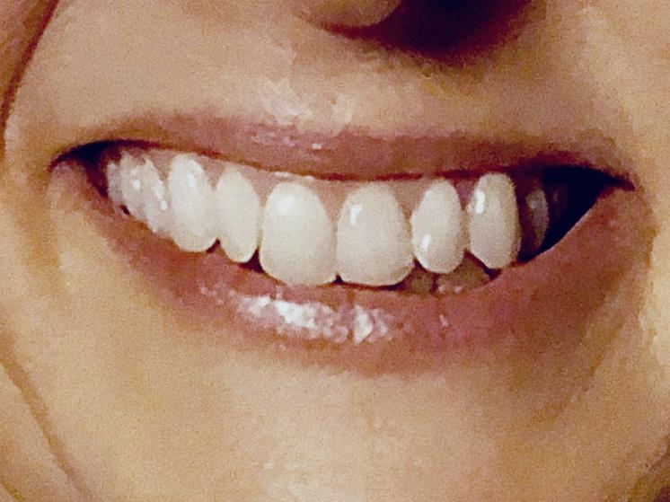 Lächeln einer Politikerin von einem Wahlplakat