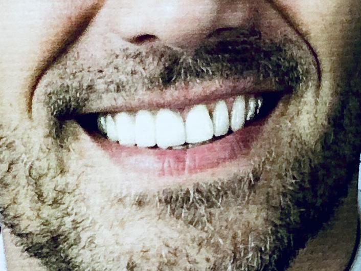 ein Politiker lächelt von einem Wahlplakat