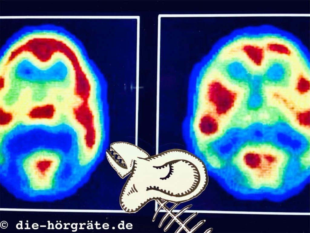 Abbildung zum Beitrag über Neuronen und Musik auf die-hörgräte.de
